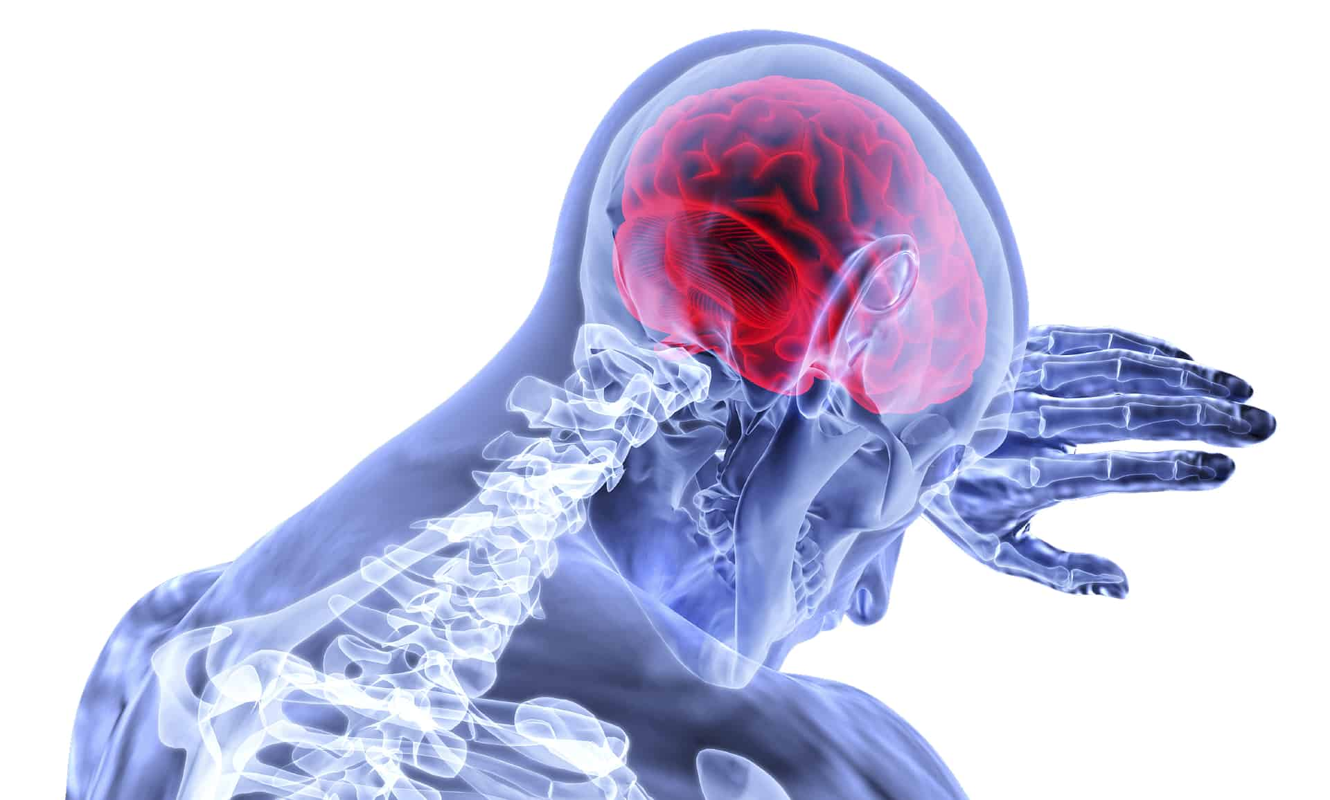 Brain-Injury-Traumatic-Skull-Concussion-Fracture-Hemorrhaging-Bleeding-Post-Concussion-Syndrom-PCS-Personal-Injury-Attorney-Lawyer-Money-Settlement-Pain-Injury